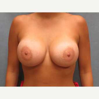 25-34 year old woman treated with Breast Implants after 3635410