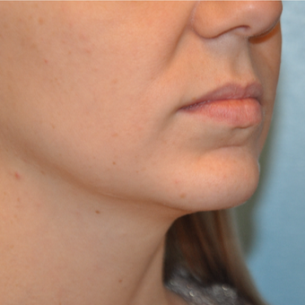 25-34 year old woman treated with Chin Implant after 3059654