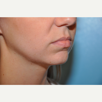 25-34 year old woman treated with Chin Implant before 3059654