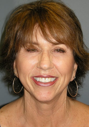 LiteLift™ and Platysmaplasty on 62-year-old Woman 387671