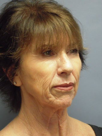 LiteLift™ and Platysmaplasty on 62-year-old Woman before 387671