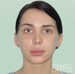 MTF Facial Feminization Surgery after 2704804