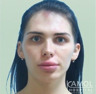 MTF Facial Feminization Surgery before 2704804