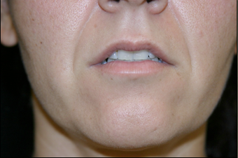 Upper Lip Lift or Lips  before 725806