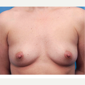 45-54 year old woman treated with Sientra Breast Implants before 3418059