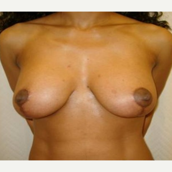 35-44 year old woman treated with Breast Lift with Implants after 3408441