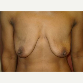 35-44 year old woman treated with Breast Lift with Implants before 3408441