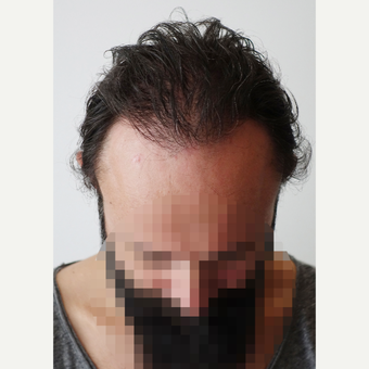 35-44 year old man treated with Hair Transplant after 3522640