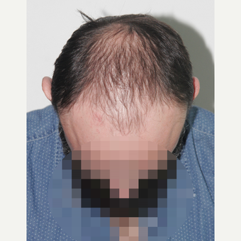 35-44 year old man treated with Hair Transplant before 3522640