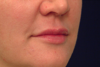 Injectable Filler after 149358