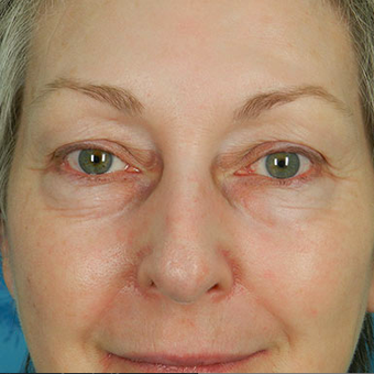Eyelid Surgery before 3124912