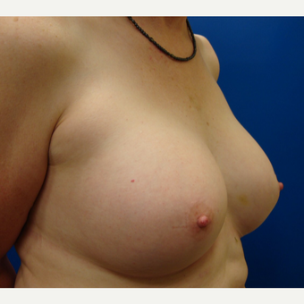 55-64 year old woman treated with Breast Implants after 3669431
