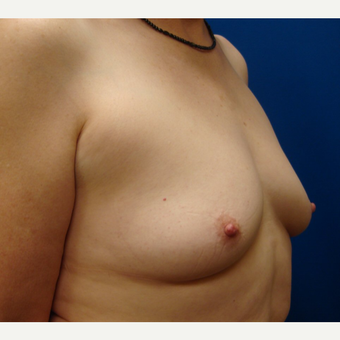 55-64 year old woman treated with Breast Implants before 3669431