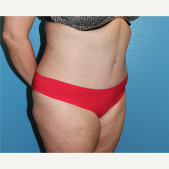 35-44 year old woman treated with Tummy Tuck after 3846295