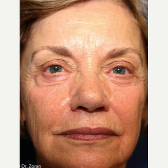 65-74 year old woman treated with Eyelid Surgery before 3093452