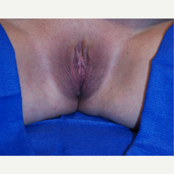 25-34 year old woman treated with Labiaplasty after 3004071