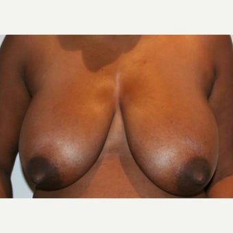 25-34 year old woman treated with Breast Reduction before 1745042