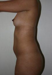 18-24 year old woman treated with Breast Augmentation before 1813947