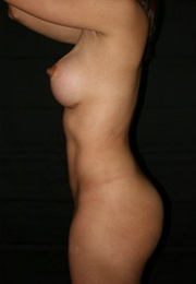 18-24 year old woman treated with Breast Augmentation after 1813947