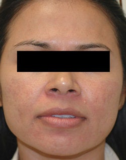 Rosacea Treatment with Lasers after 106550
