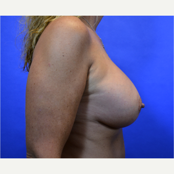35-44 year old woman treated with Breast Augmentation after 3579924