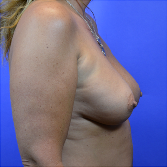 35-44 year old woman treated with Breast Augmentation before 3579924