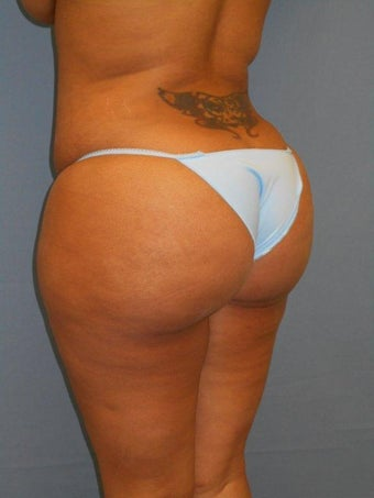Butt Augmentation after 1300173