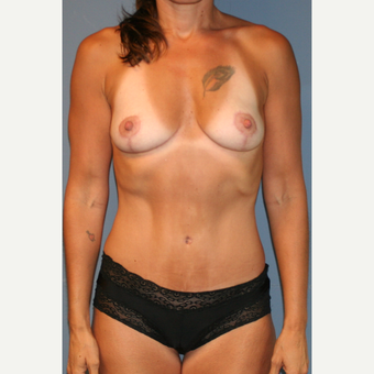35-44 year old woman treated with Breast Lift after 3454580