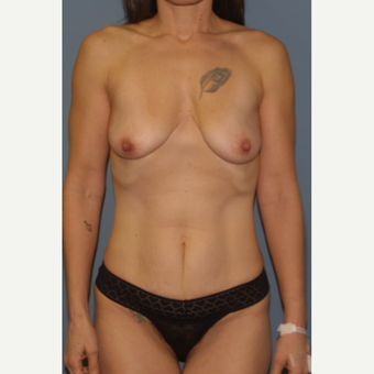 35-44 year old woman treated with Breast Lift before 3454580
