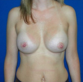 25-34 year old woman treated with Breast Augmentation after 2971279