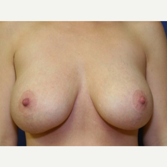 28 year old woman with a Breast Augmentation after 3104167