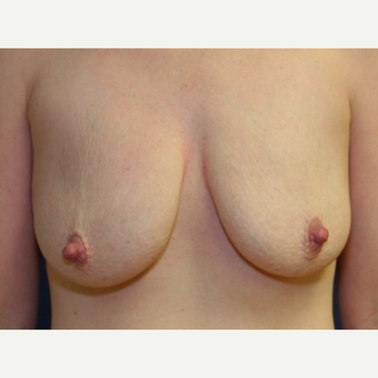 28 year old woman with a Breast Augmentation before 3104167