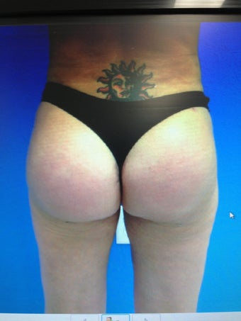 Gluteal Augmentation with silicone implants and fat grafting combo after 1203994
