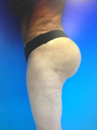 Gluteal Augmentation with silicone implants and fat grafting combo 1203994