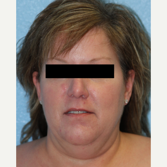 45-54 year old woman treated with Neck Lift before 3215477