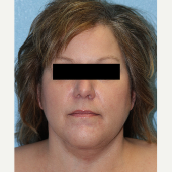 45-54 year old woman treated with Neck Lift after 3215477