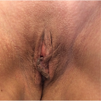 45-54 year old woman treated with Vaginal Rejuvenation after 3162424