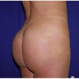 Gluteal augmentation  after 1581270