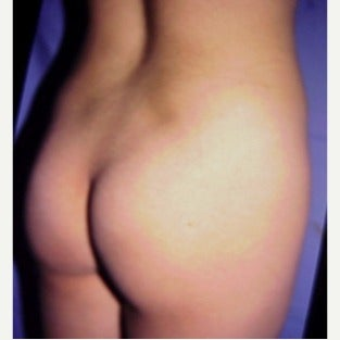 Gluteal augmentation  before 1581270