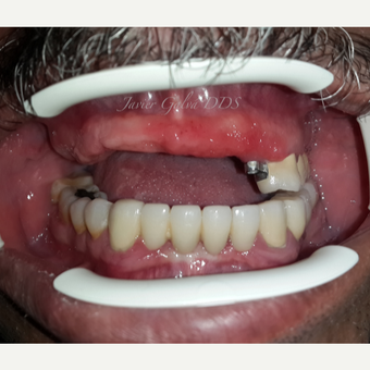 Implant supported Overdenture before 3119765