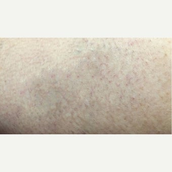 35-44 year old woman treated with Vein Treatment after 2565237