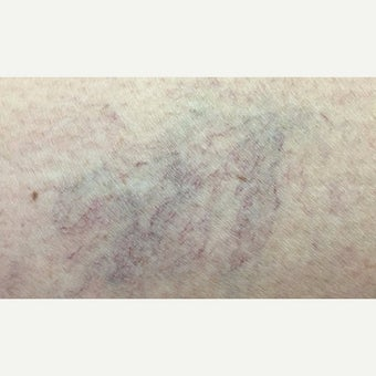 35-44 year old woman treated with Vein Treatment before 2565237