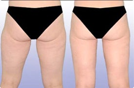 Smart Lipo: Buttocks/Thigh Area before 989028
