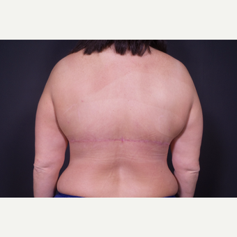 45-54 year old woman treated with Body Lift after 3347235