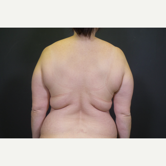45-54 year old woman treated with Body Lift before 3347235
