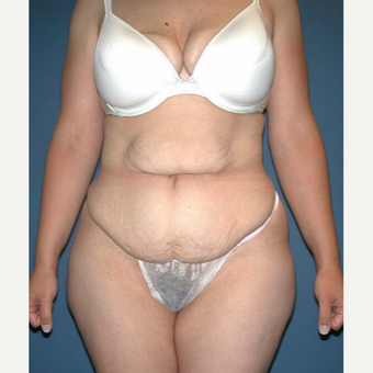 35-44 year old woman treated with No-Drain Tummy Tuck before 3649338