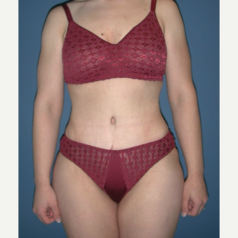 35-44 year old woman treated with No-Drain Tummy Tuck after 3649338