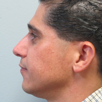 25-34 year old man treated with Rhinoplasty after 3224765