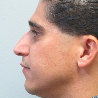 25-34 year old man treated with Rhinoplasty before 3224765