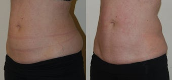 CoolSculpting to abdomen and love handles before 1376633